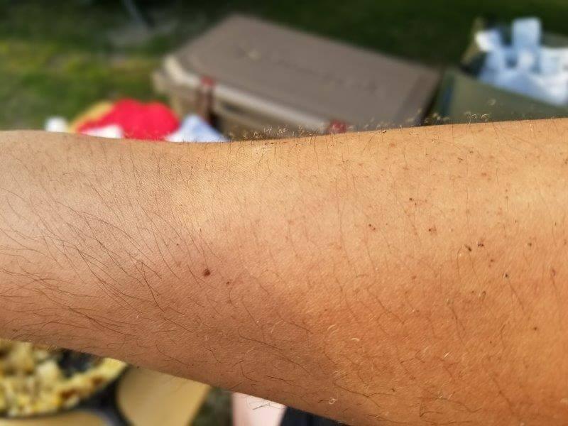ゴンドーシャロレー日記:燃えてチリチリになった腕毛